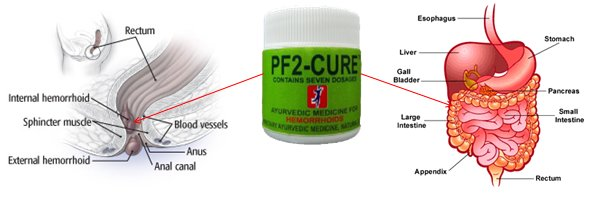 approach of PF2-CURE